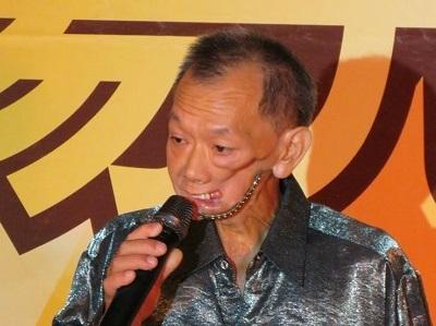 癌末下的缺角人生 用痛口唱出生命樂章 -口友 阿德大哥
