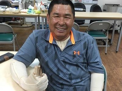 地表最強老爸 為女兒勇敢迎戰燒傷 -傷友 永崎大哥