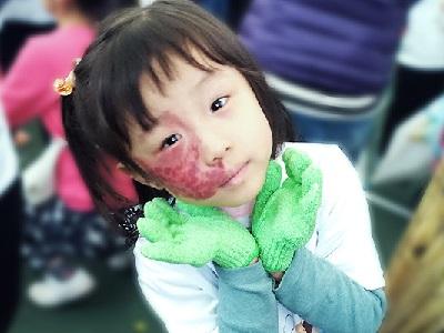 五歲顏面胎記女孩無畏疼痛,彩繪夢想